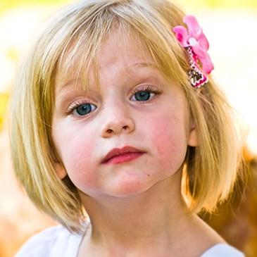 Faringită acută la copii